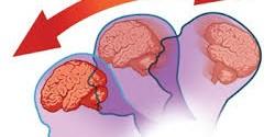 ارتجاج الدماغ (Concussion)