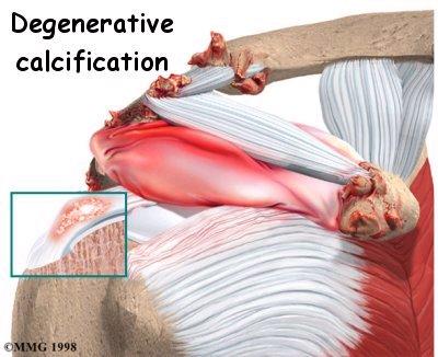 تكلس الكتف (Shoulder calcification)
