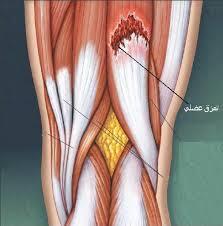 التمزق العضلي (Rupture)  الاسباب ..الاعراض .. العلاج ..